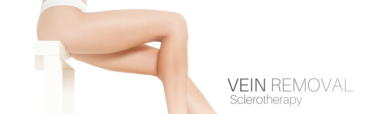 Thread Vein Removal